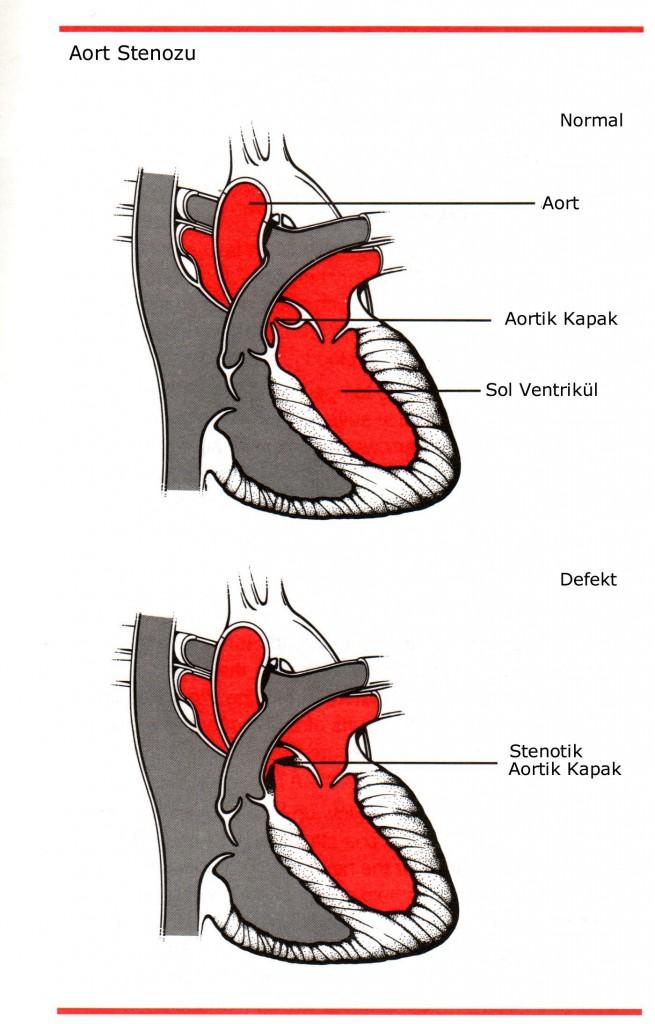 Aort Stenozu, Aort yetersizliği