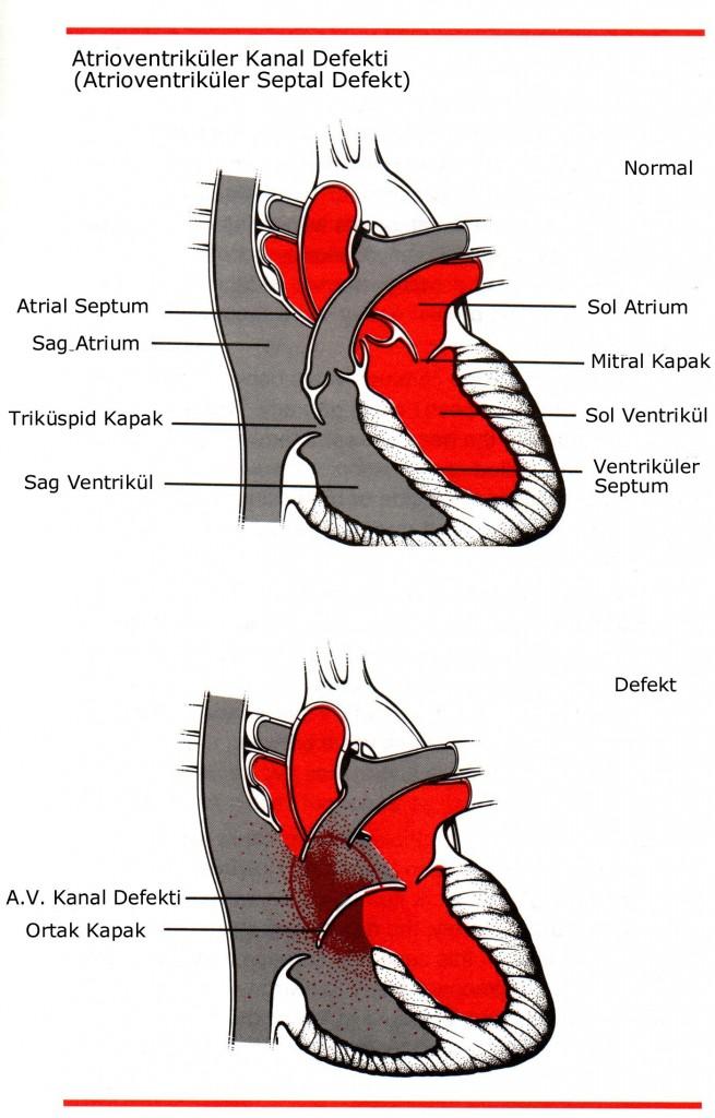 Atrioventriküler Septum Defekti