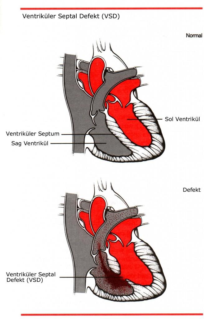 Ventriküler Septal Defekt